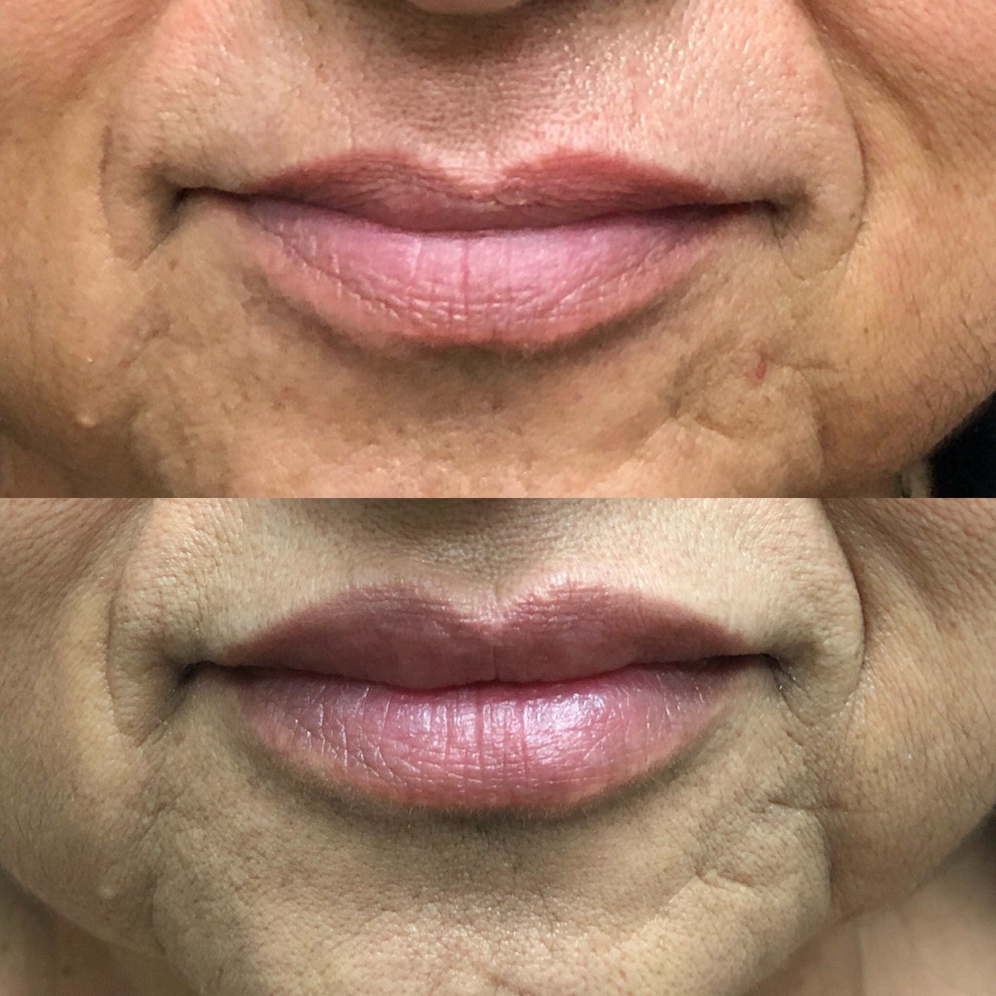Best Lip Augmentation Beverly Hills | Dermal Fillers in Los Angeles