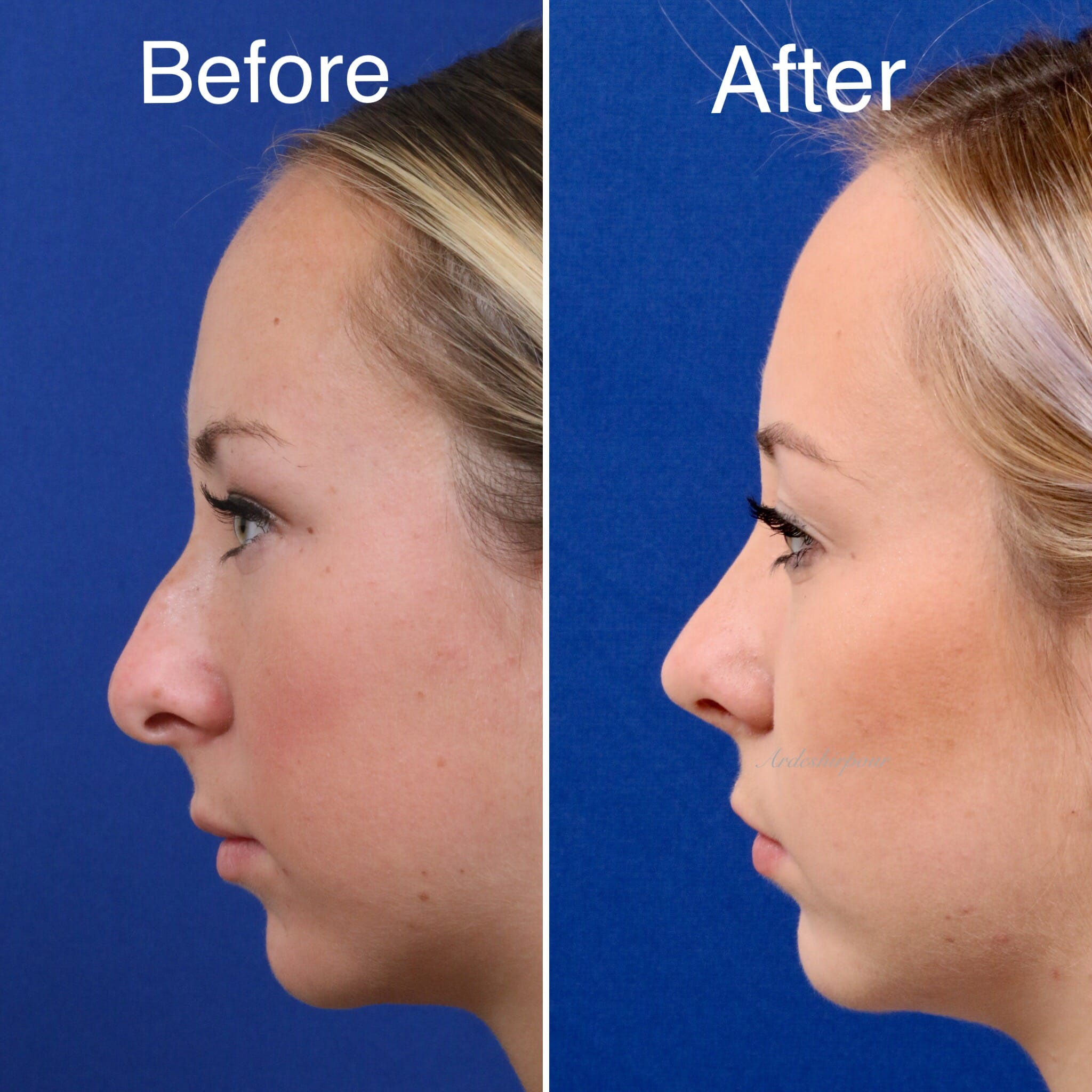 Rhinoplasty in Glendale