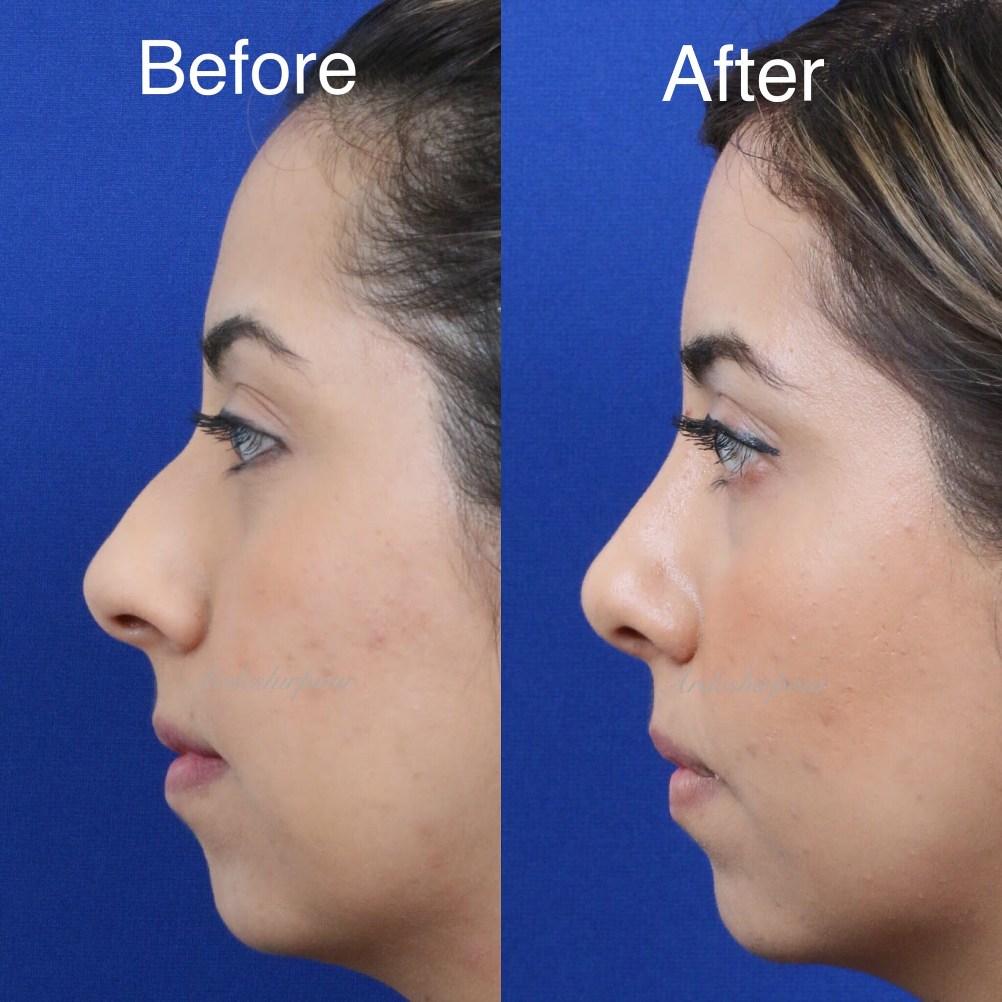 What is the best age to get a nose job?